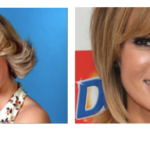 Amanda Holden Plastic Surgery Before and After