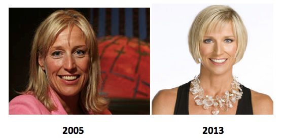 candice olson plastic surgery before and after latest