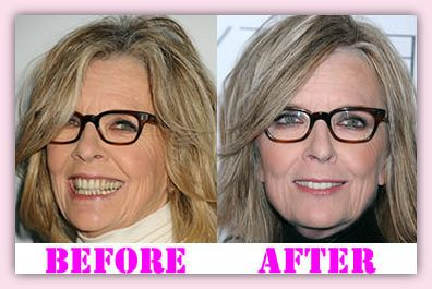 Diane Keaton Plastic Surgery Before And After on Forest Theme