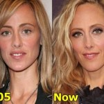 Kim Raver Plastic Surgery Before and After