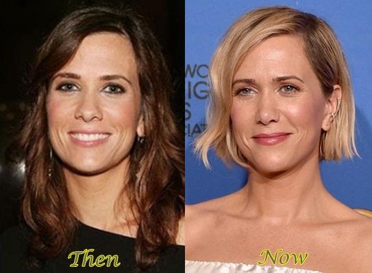 Kristen-Wiig-Plastic-Surgery-Nose-Job