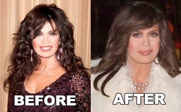 Marie-Osmond-Botox-Plastic-Surgery-Before-and-After-Face-Photos1