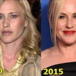 Patricia Arquette Plastic Surgery Before And After Photos