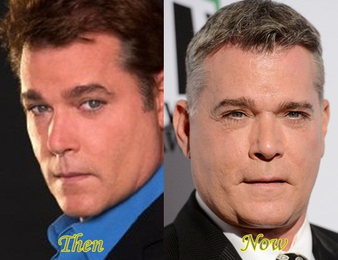 Ray Liotta Plastic Surgery Before And After - Latest ...