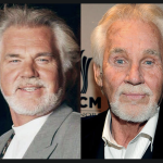 Kenny Rogers Plastic Surgery – Before and After Photos