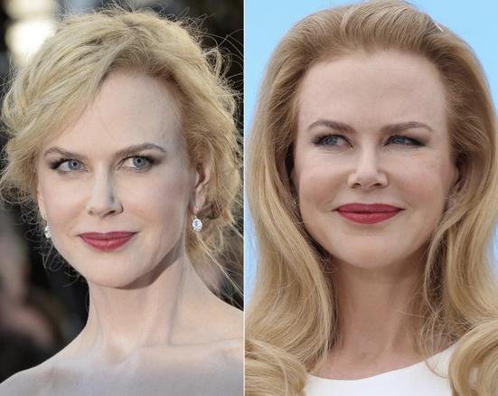 Nicole Kidman Plastic surgery images