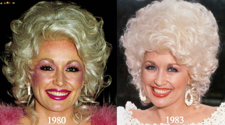 Dolly parton plastic surgery before and after photos photo credit left walter mcbride retna right michael putland publicscrutiny Choice Image