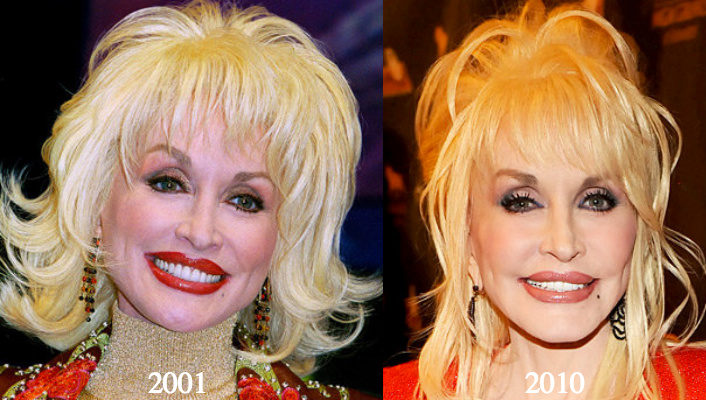 Dolly parton plastic surgery before and after photos photo credit left retna right rick diamond getty images publicscrutiny Choice Image