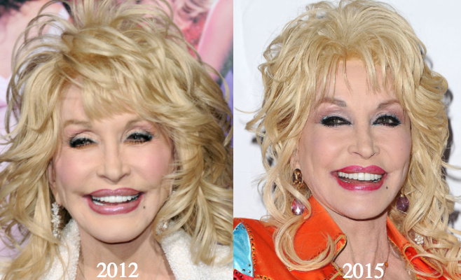 Dolly parton plastic surgery before and after photos photo credit left albert l ortega right jason laveris publicscrutiny Choice Image