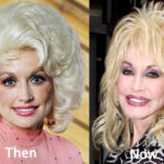 Dolly Parton Plastic Surgery Before And After Photos
