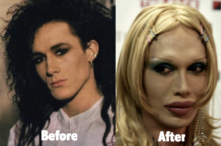 Pete Burns has many plastic surgeries and wants to look better