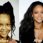 Rihanna Plastic Surgery Before and After Photos