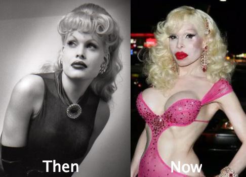 Amanda Lepore Awful plastic surgery
