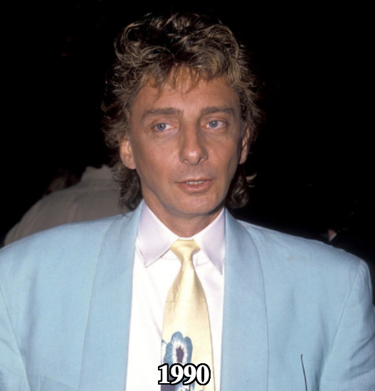 Barry Manilow before plastic surgery 1990