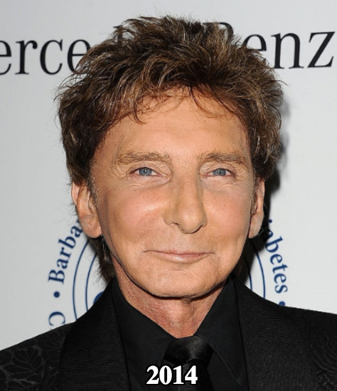 Barry Manilow botox and facial fillers cheek lift 2014