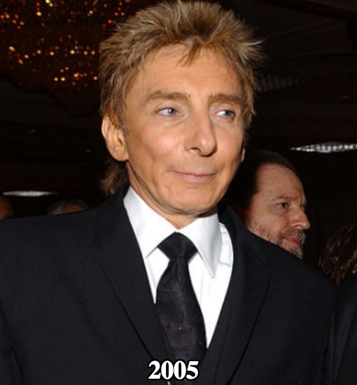 Barry Manilow botox before and after 2005
