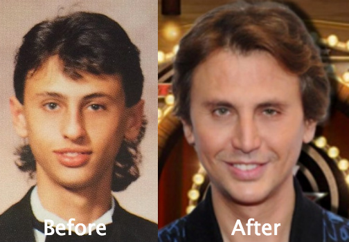 Jonathan Cheban suspected of plastic surgery
