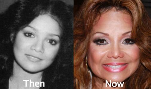 La Toya Jackson awful plastic surgery