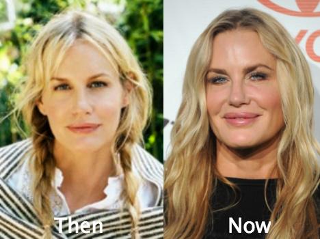 daryl hannah awful plastic surgery