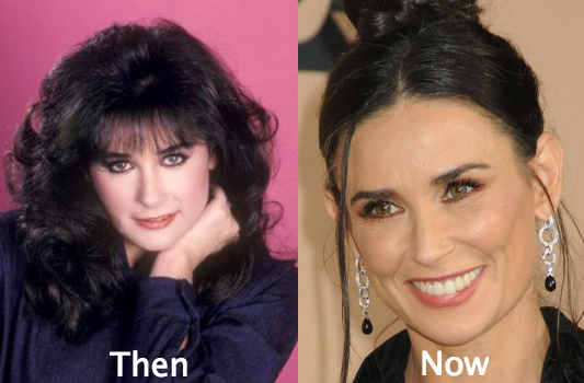 Demi Moore nose looks different
