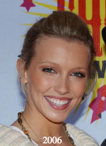 Katie Cassidy plastic surgery 2006