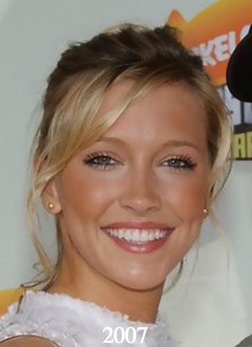 Katie Cassidy plastic surgery 2007