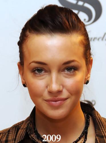 Katie Cassidy plastic surgery 2009