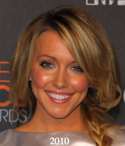 Katie Cassidy plastic surgery 2010