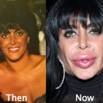 Big Ang Plastic Surgery Before and After Photos