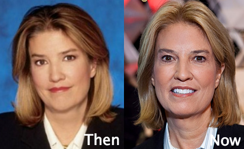 Did Greta Van Susteren Undergo plastic surgery