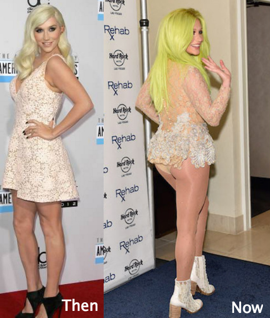 Did Kesha go for butt augmentation?