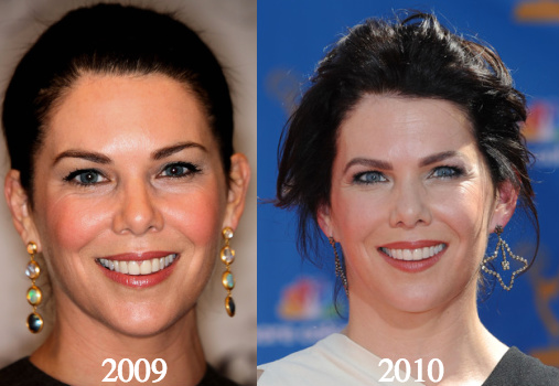 Lauren Graham Plastic Surgery Before and After Photos