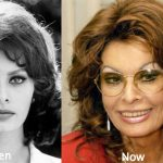 Sophia Loren Plastic Surgery Before and After Photos