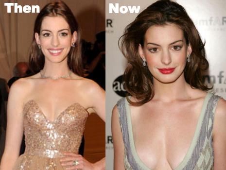 Anne Hathaway boob job