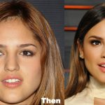 Eiza Gonzalez Plastic Surgery Before and After Photos