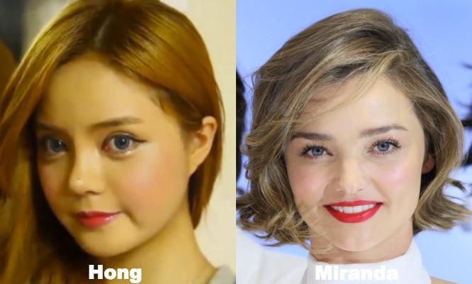 Miranda Kerr Cosmetic surgery