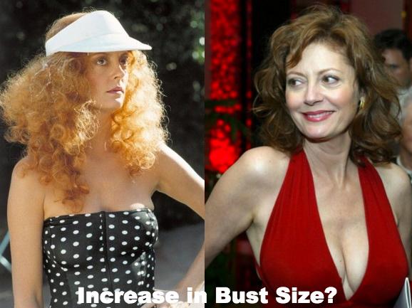 Susan Sarandon boob job