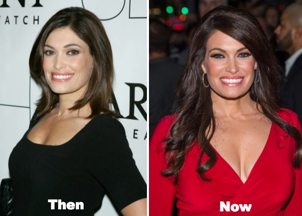 Kimberly guilfoyle plastic surgery before and after photos pmusecretfo Image collections