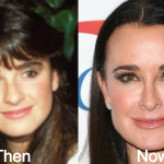Kyle Richards Plastic Surgery Before and After Photos