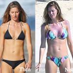 Gisele Bundchen Plastic Surgery Before and After Photos
