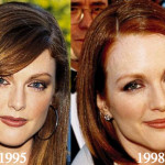 Julianne Moore Plastic Surgery Before and After Photos