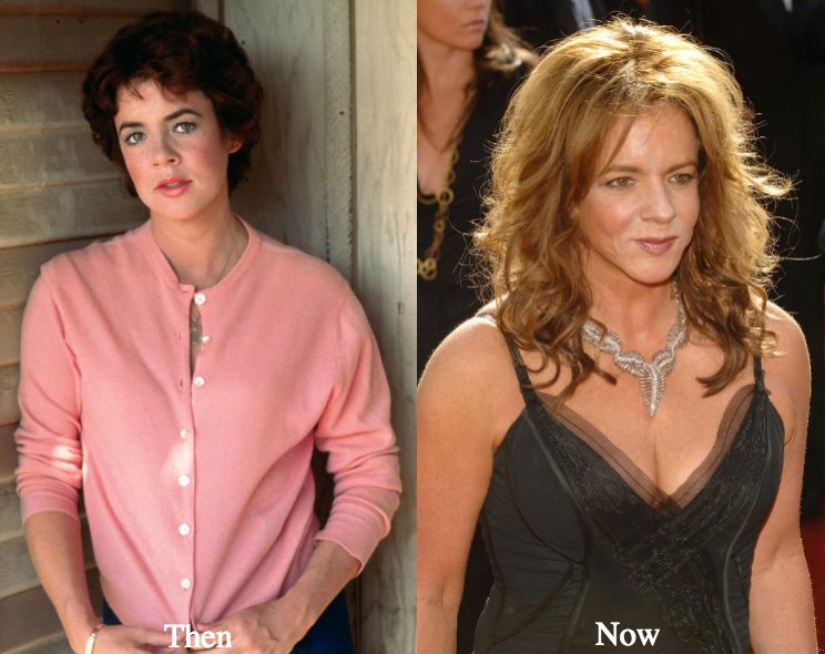 Stockard Channing boob job before and after