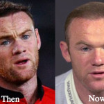 Wayne Rooney Plastic Surgery Before and After Botox