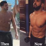 Drake Plastic Surgery Before and After Photos