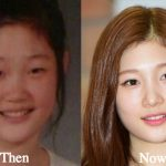 Jung Chae Yeon Plastic Surgery Before and After Photos