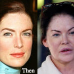 Lara Flynn Boyle Plastic Surgery Before and After Photos