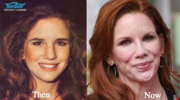 Melissa Gilbert botox fillers nose job cheek lifts