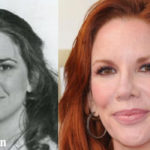 Melissa Gilbert Plastic Surgery Before and After Photos