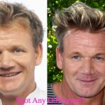 Gordon Ramsay Plastic Surgery Before and After Photos