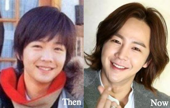 Jang Geun Suk rhinoplasty plastic surgery